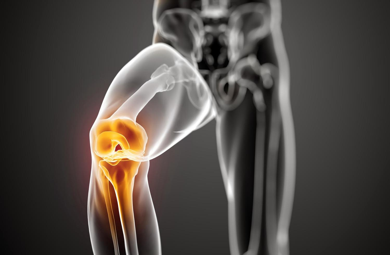 prevenir las lesiones deportivas